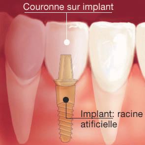 couronne sur implants